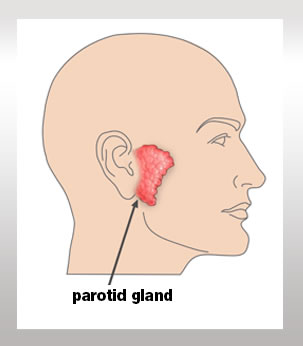 Parotid tumors specialists | New Jersey | Essex County